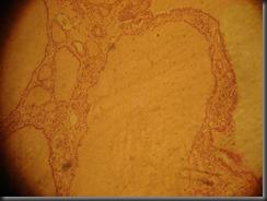 Colloid Goitre- high resolution histology slide tsnaps
