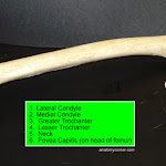 femur02_labeled.jpg