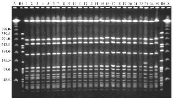 Exemplo de uma PFGE; Staphylococcus aureus resistente.