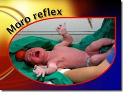 moro reflex medicalshow