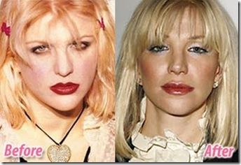 Courtney Love - Plastic Surgery Connoisseur