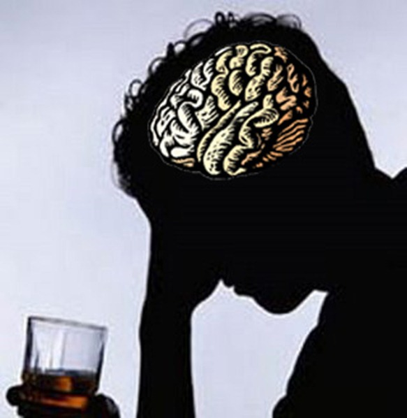 alcoholismocerebro