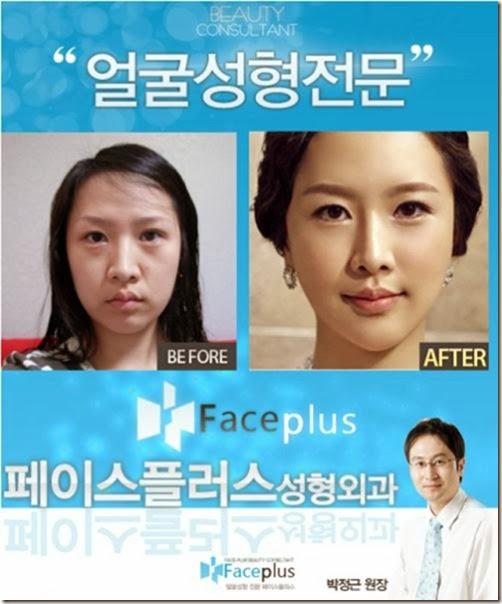 korean-plastic-surgery-39