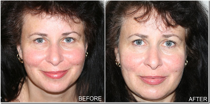 No7 Skincare Challenge, Part 2!