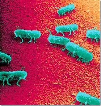 Contoh gambar SEM Salmonella. Kredit gambar:  http://www.foodpoisonjournal.com/foodborne-illness-outbreaks/tricities-salmonella-outbreak-or-isolated-case/#.Uk557UZXjIV