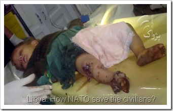 baby-injured-by-nato-LIBYA-OIL-WAR