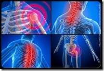 fibromyalgiaPainLocations
