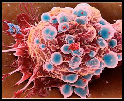 doa,sel,kanser,musnah,amalan,sains,