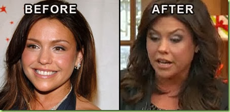 rachael-ray-eyebrow lift