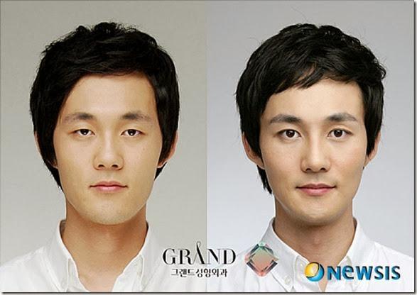 korean-plastic-surgery-38