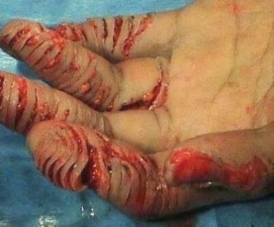 punição-ler-bíblia-arábia-saudita-triturar-dedos