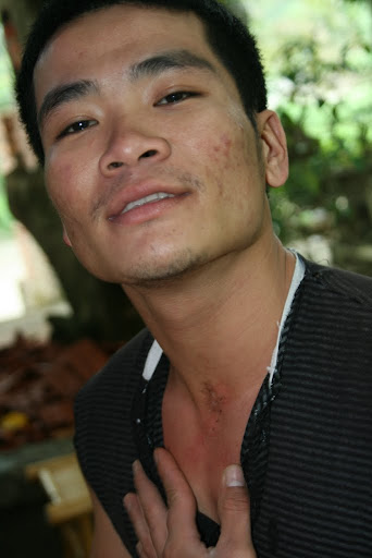 Looking at Sieu's neck, who has been training for 15 years, the scars show it wasn't easy...
