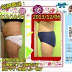 【孕媽咪產後瘦身】佑家-小詩媽咪:使用產品【2個月後】皮膚/妊娠紋路/身形 大改造