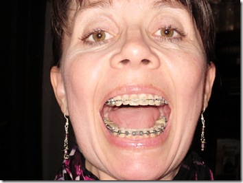 Braces and Wrinkles