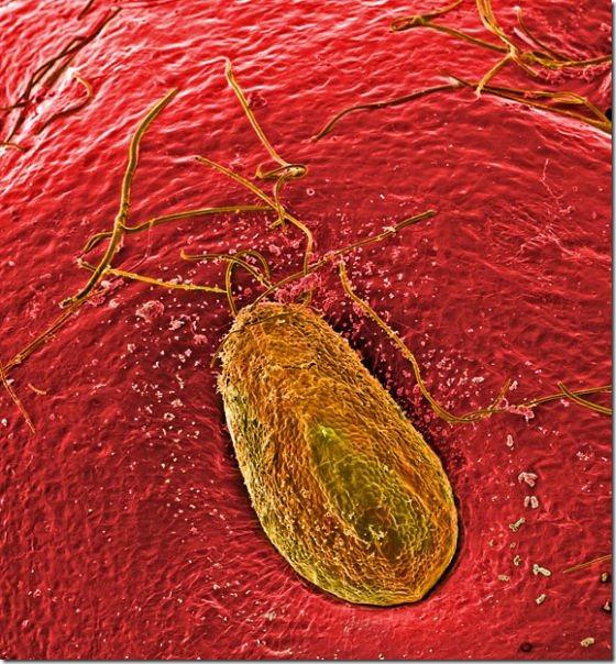 food-electron-micrograph-14