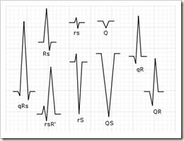 325px-QRS_nomenclature