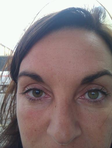 vätska bakom ögat