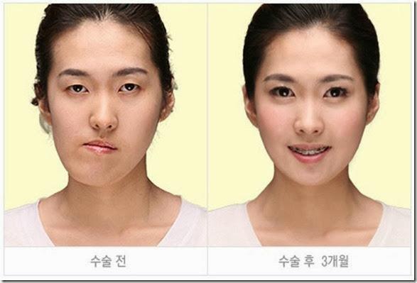 korean-plastic-surgery-34