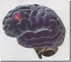 Cerebro-error 001