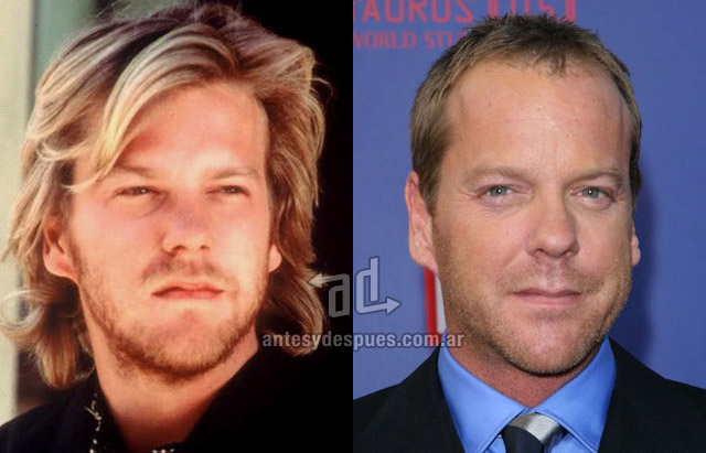 Hair Loss Before &amp; After of  Kiefer Sutherland