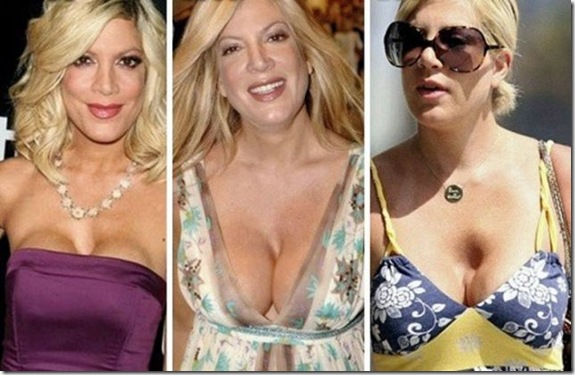 celebrity-fake-boobs-da5ba1
