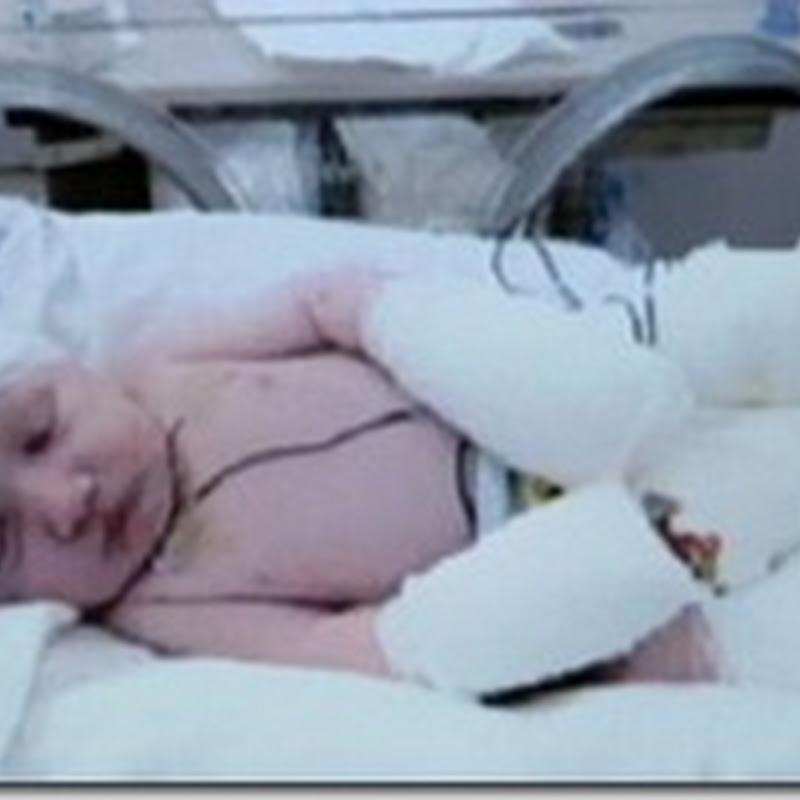الطفل الشفاف - طفل يولد بدون جلد ومخه يظهر عبر رأسه الشفاف