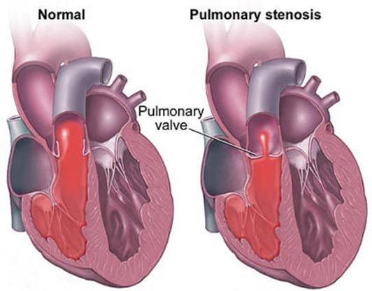 pulmonary-stenosis