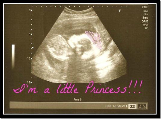 I'm a GIRL!!!