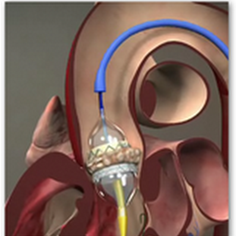 UCLA Performs It's First Transcatheter Aortic Valve Replacement–Aortic Heart Valve Implant Without Open Heart Surgery