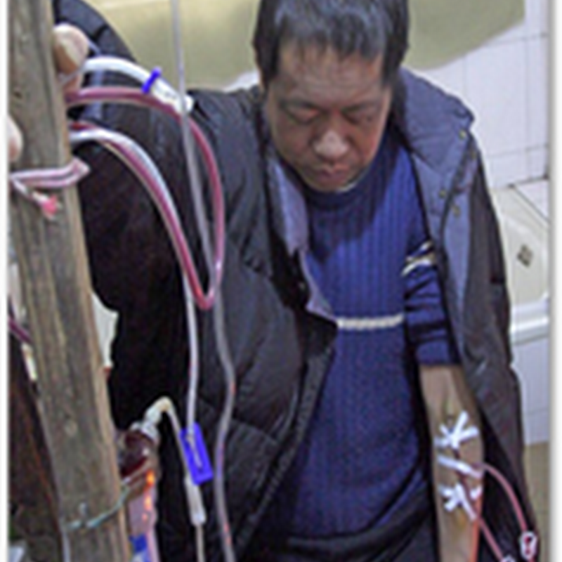 Chinese Man Builds Homemade Dialysis Machine To Keep Himself Alive for 13 Years As He Could Not Afford Treatment