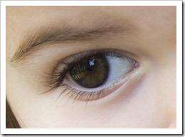 179 eye