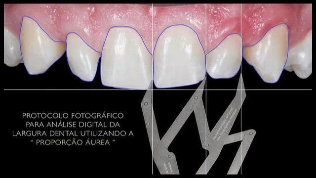 maxresdefault - Proporção Áurea na Odontologia