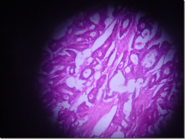 adenocarcinoma histopathology