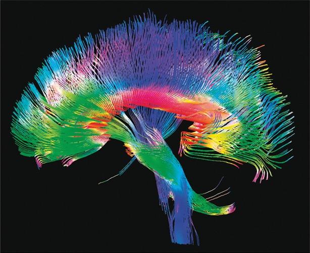 cerebro reparacion