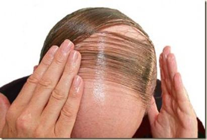 caida del cabello--
