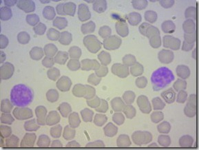 linfociti3