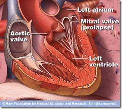 mitral-valve