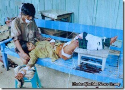Kachin civilian injured by Burma army mine