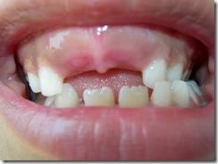 sem dente
