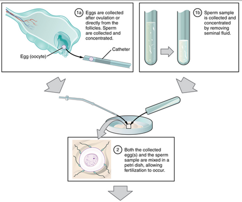 proses bayi tabung