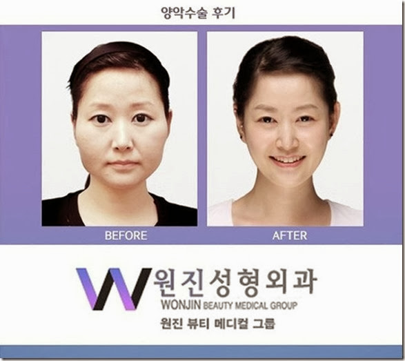 korean-plastic-surgery-36