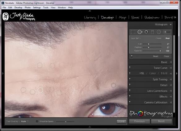 editar10