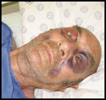 POTTIE POTGIETER WINBURG WELKOM LEFT FOR DEAD 5 BL ATTACKERS WINBURG JAN182012