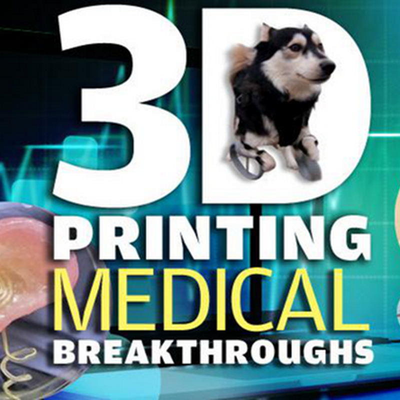 7 3D PRINTING MEDICAL BREAKTHROUGHS OF 2014