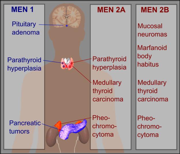 Multiple_endocrine_neoplasia