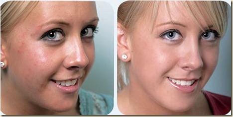 acne-nkhs