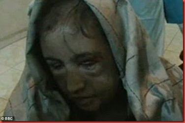 dreadfulsahar-gul-appalling-physical-condition-shortly-after-sherescue-_tvya
