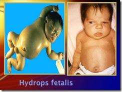hydrops fetalis2 medicalshow