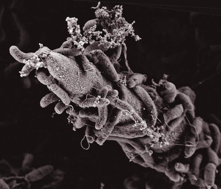 Microscopia Eletrônica de Vibrio cholerae em meio de quitina