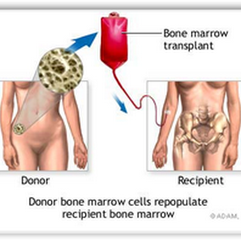 Bone Marrow Donors Now Have the Opportunity to be Paid–California Judge Rules This is Not An Organ Transplant